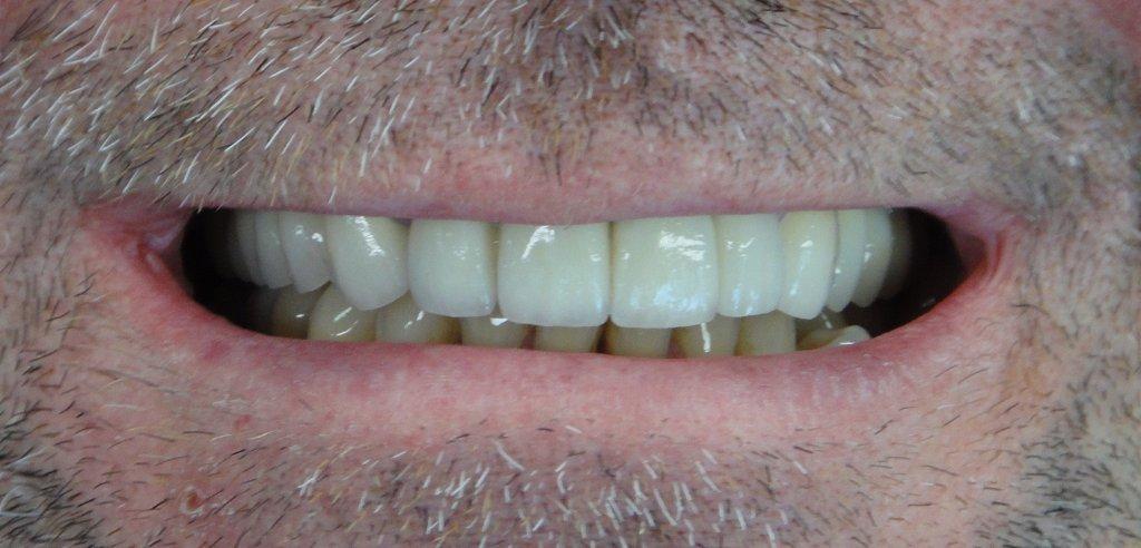 Cosmetic Dental Surgery | Europe Surgery